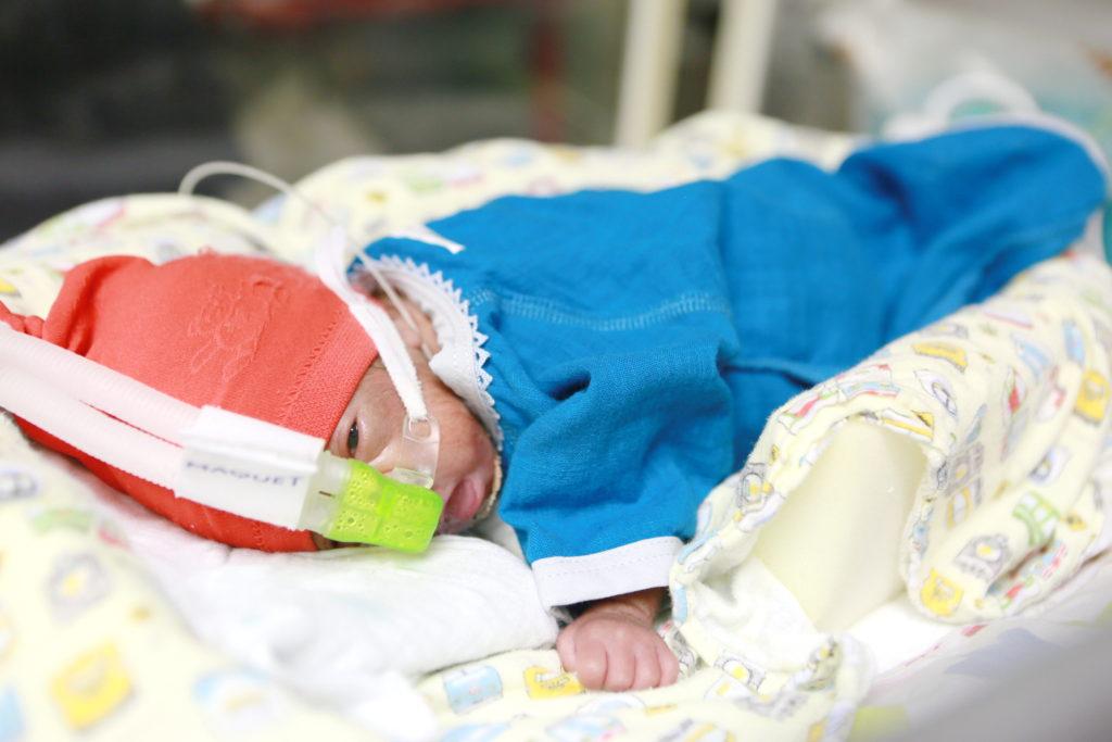 NICUの保育器と低体重児 帝王切開で生まれた赤ちゃん