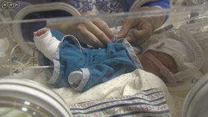 NICUの保育器で低出生体重児(未熟児)の服を着る赤ちゃん