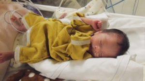 NICUでベビー服を着た低出生体重児(未熟児)