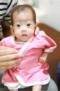 低出生体重児(未熟児)の写真