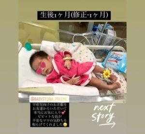 低出生体重児(未熟児)赤ちゃんの体重1400g